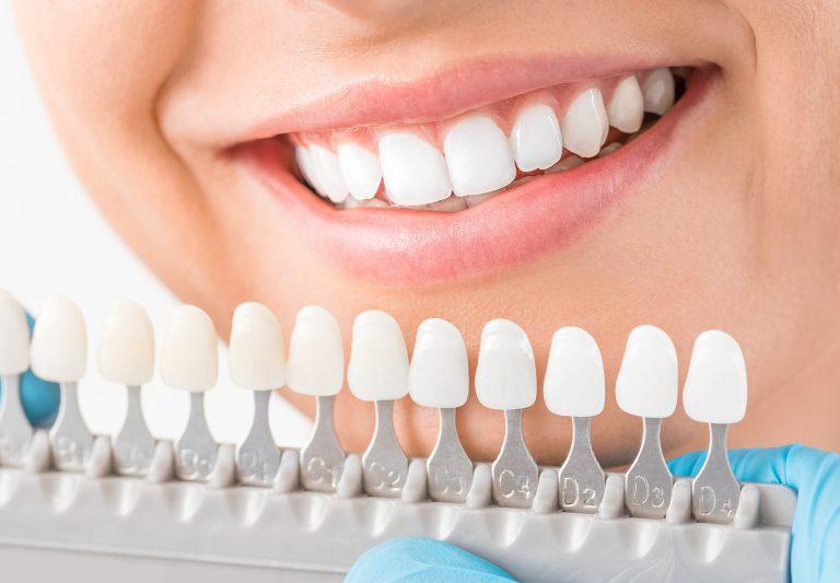 tooth implant vs bridge