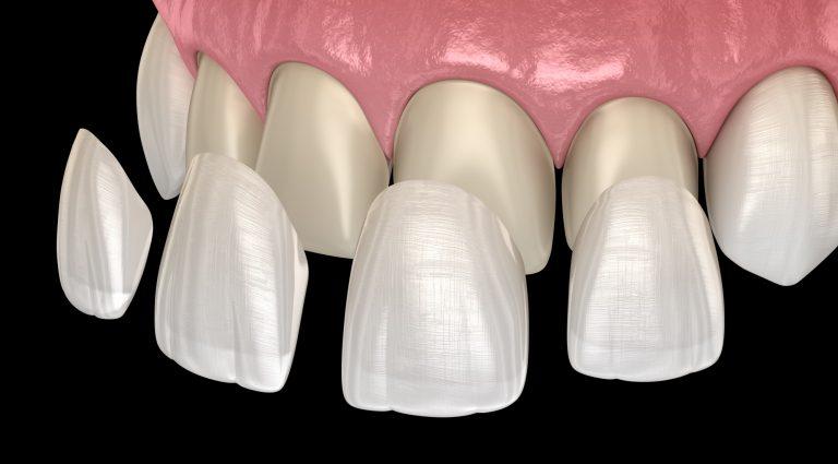 veneers vs dentures
